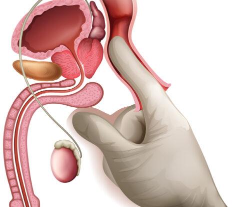 Prostatite - Urolife